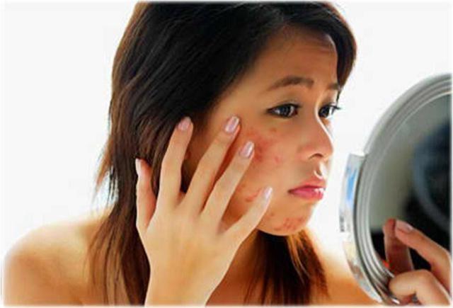 Chọn kem dưỡng da mặt không phù hợp sẽ chỉ gây thêm mụn cho da - Ảnh: Internet